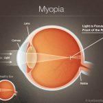 Cara Menghilangkan Mata Minus