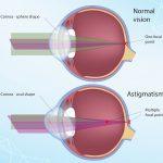 Apakah Mata Silinder Bisa Disembuhkan?