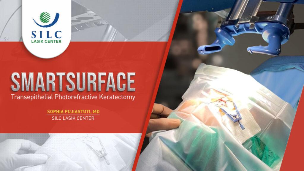 Operasi Lasik Smartsurface